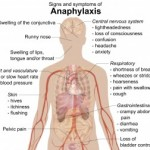 Signs_and_symptoms_of_anaphylaxis-300x252